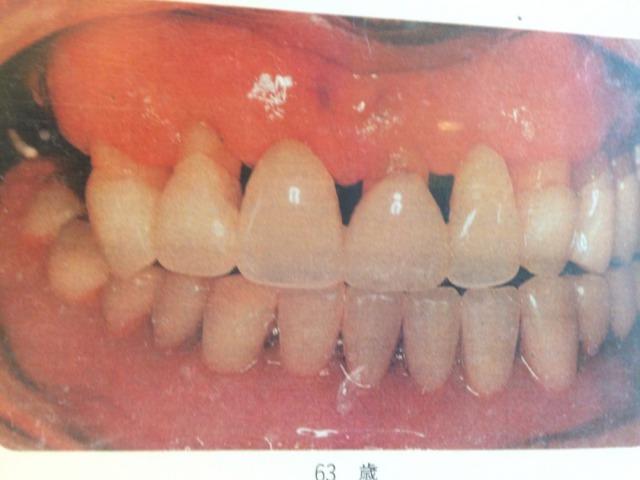 痛い の 法 対処 歯 が 時 「歯が痛い!」でも今すぐ歯医者さんに行けないときの対処法とNG行動